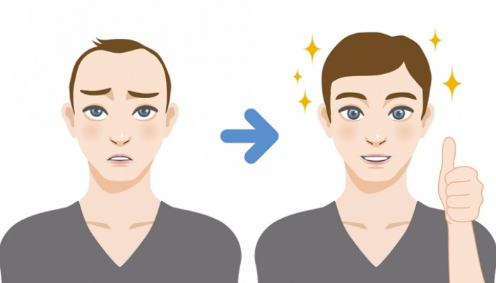 How much does a hair transplant cost in men?