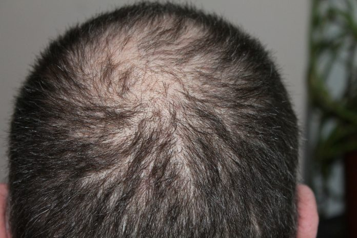 All You Need to Know About Getting a Hair Transplant
