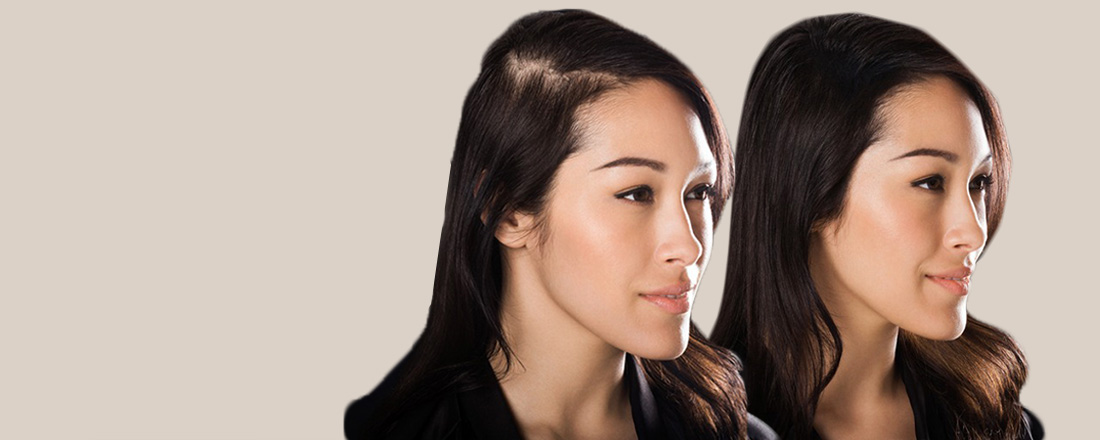 Shine Hair Studio specializes in hair Replacement