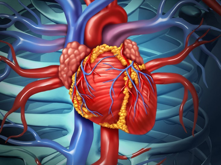 OPEN-HEART SURGERY - THINGS YOU NEED TO KNOW