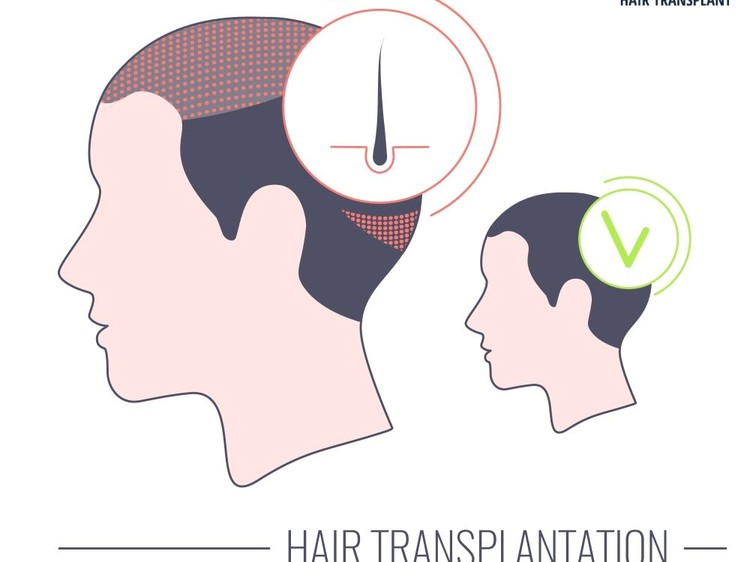 Is Long Hair Transplant Successful? - what is long hair transplant and how it is performed