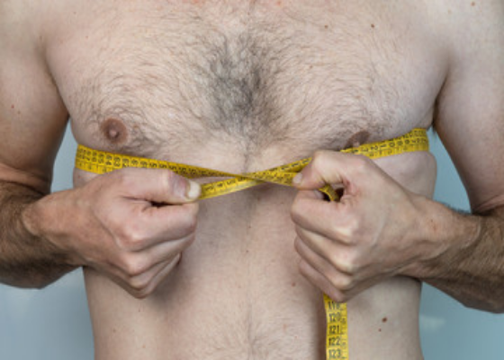 Male Breast Reduction Surgery is a Perfect Solution to Gynaecomastia
