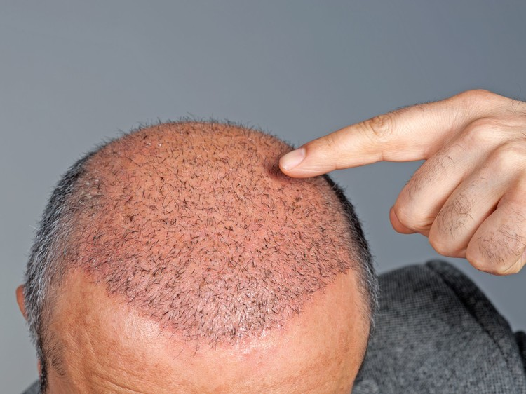 Hair Growth After Hair Transplant Surgery