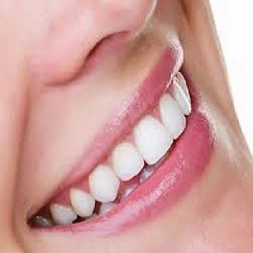 44% Teeth Whitening Gel - How Strong is Too Strong
