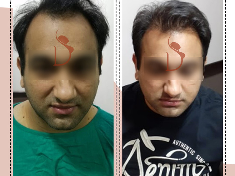 How to Choose the Best Hair Transplant Surgeon in Delhi?
